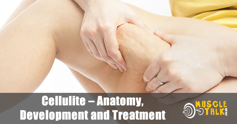 Cellulite - Anatomy, Development and Treatment